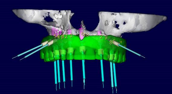 cirurgia-guiada-implante