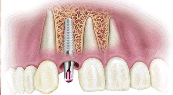 cirurgia-implante