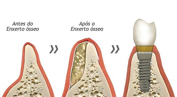 enxerto-osseo-dentario