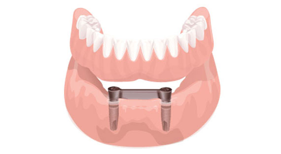 implante-protese-overdenture