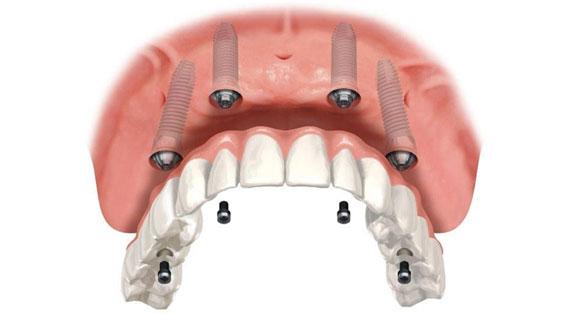 implante-protese-protocolo