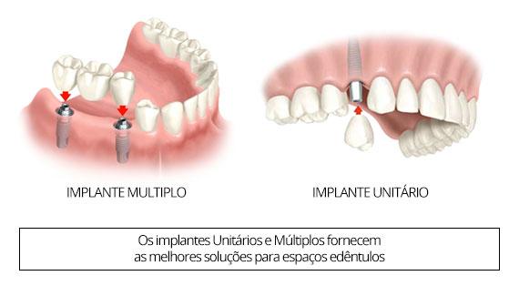 implante-unitario-e-multiplo