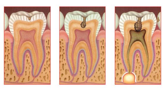 inflamacao-pulpar-endodontia