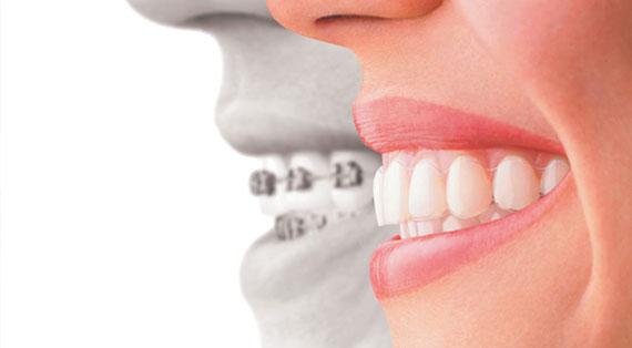 o-que-e-ortodontia