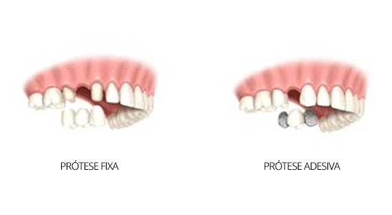 protese-fixa-protese-adesiva