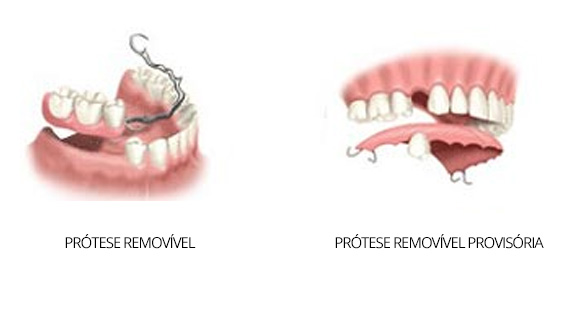 protese-removivel