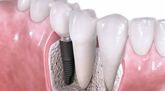 Como funciona o implante dentário?