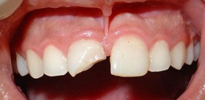 trauma-dental2